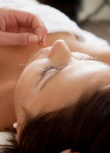 Kosmetische Akupunktur Naturheilpraxis Elke Burkert
